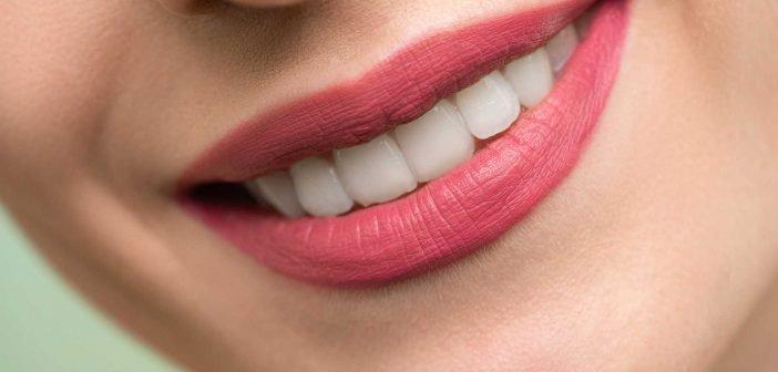 Hàm răng trắng sáng và đều đặn giúp bạn có nụ cười tỏa sáng