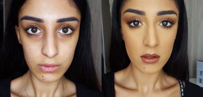 Thâm quầng mắt tiếng Anh được gọi là dark under eyes circles