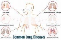 Common dangerous lung diseases