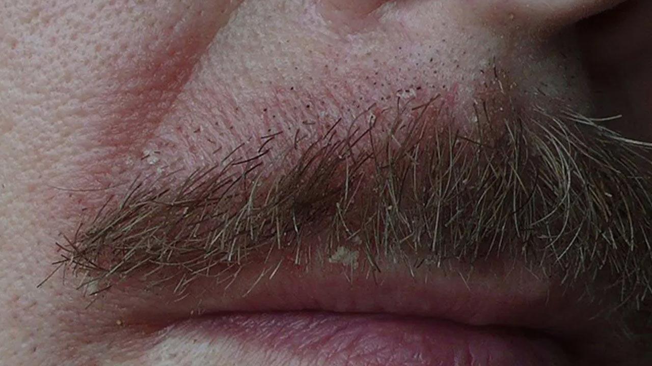 Bệnh viêm da tiết bã, còn được gọi là chàm da bã nhờn, là một tình trạng da rất phổ biến gây ra mảng da đỏ, có vảy và gàu.