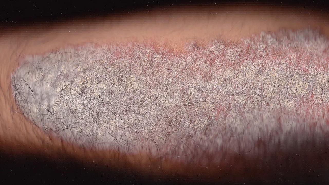 Bệnh vảy nến gây ra những mảng da đỏ, ngứa ngáy, có vảy ở trên và thường xuất hiện ở những vùng da hay bị ma sát như đầu gối, khuỷu tay, thân mình và da đầu.
