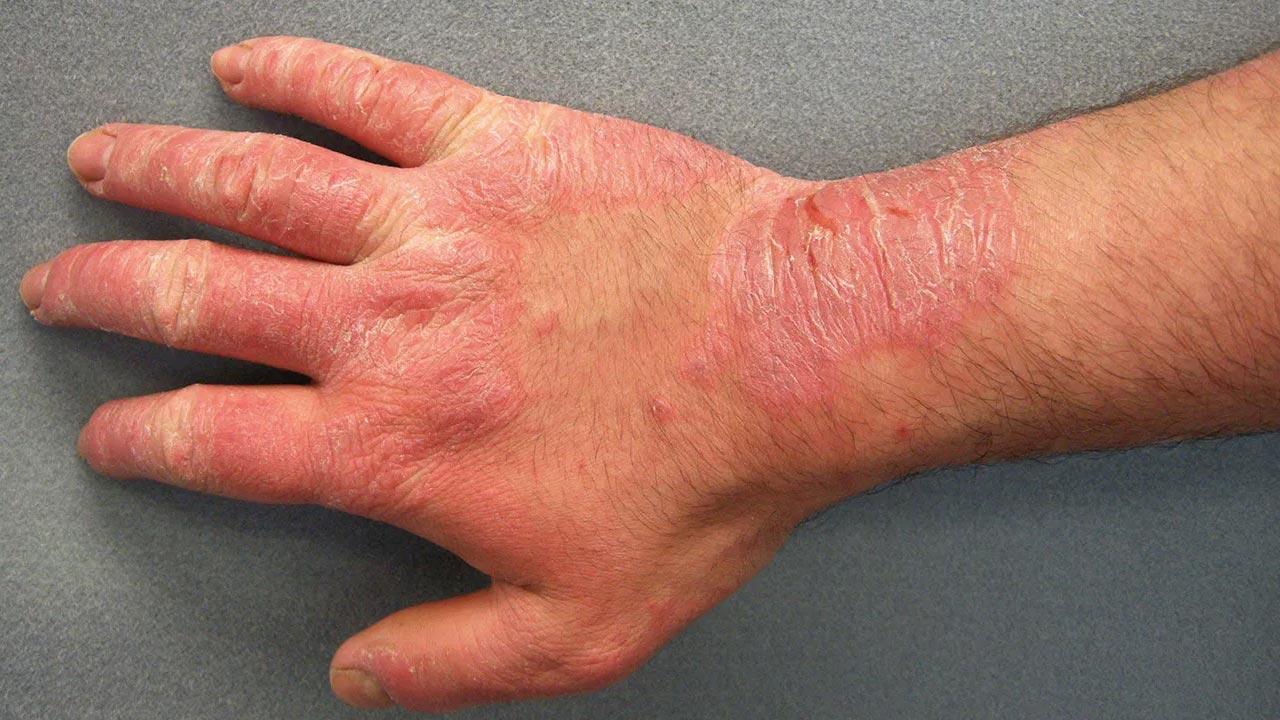 Nổi ban đỏ hoặc da gà, ngứa, các điểm thoái lui mầu đỏ, mụn nước và chất lỏng thoát ra từ da, phát ban ở khu vực tiếp xúc