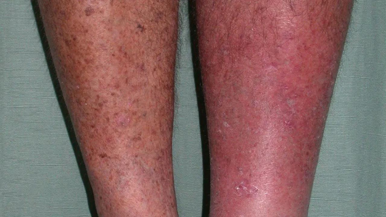 Viêm mô tế bào là một nhiễm trùng do vi khuẩn liên quan đến các lớp bên trong của da.